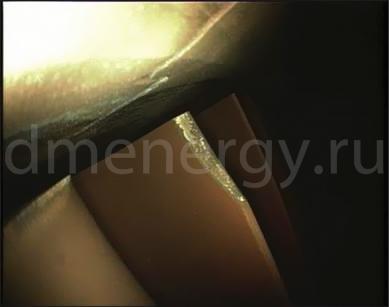 Повреждение лопаток 1-й ступени турбины